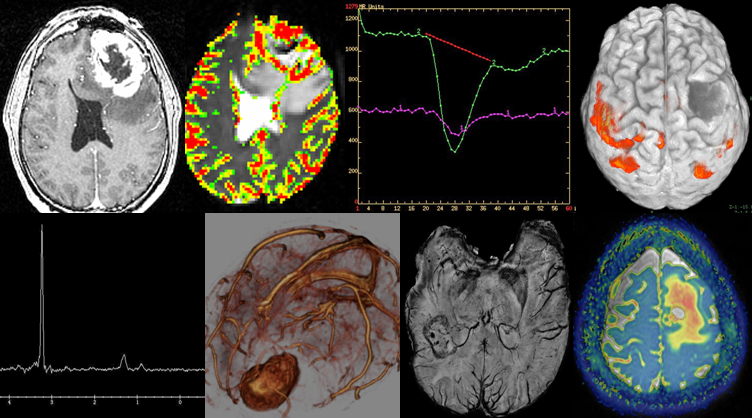 characteristics of brain tumors Brain tumor symptoms the presenting clinical features of brain tumors depend on certain factors such as the size of the tumor and the location in which the tumor arises there are certain tumors that give rise to no symptoms at all.