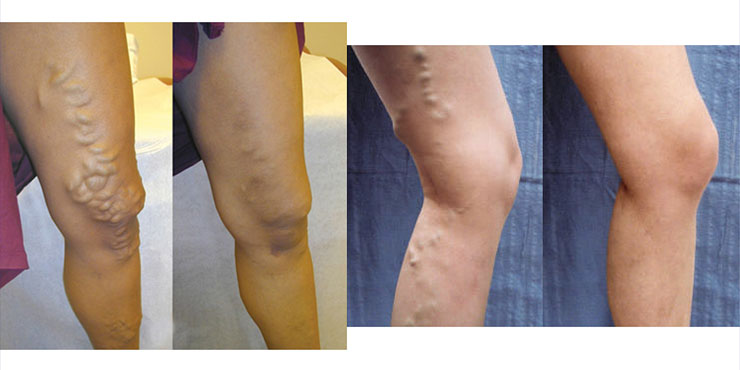 varices in legs