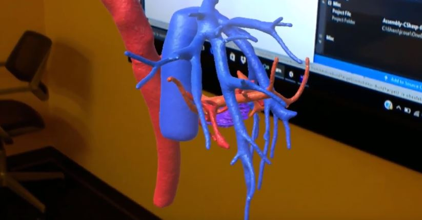 Using Augmented Reality Applications to Visualize 3D Radiology Images