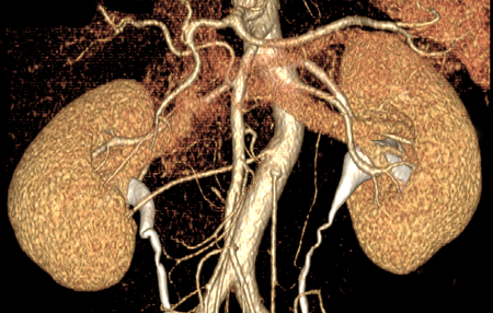 CT Angiogram - UCSF Medical
