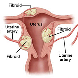 Fibroids in the uterus