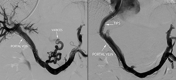 Portal Venogram – UCSF Medical
