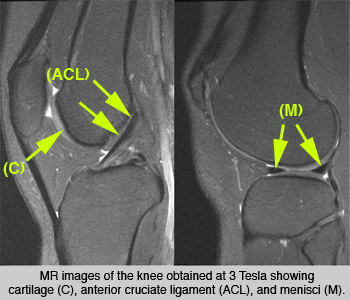 MR Images of Knee - UCSF Medical