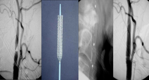Carotid Artery Stents - UCSF Medical