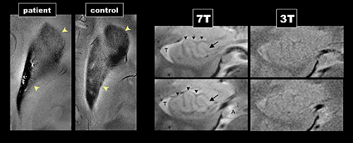 7 tesla MRI of hippocampus