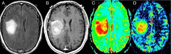 Brain Tumor Imaging GBM