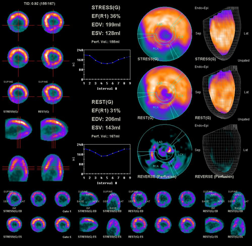 Cardiac PET Imaging - UCSF Medical