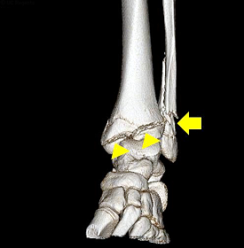 Pediatric Fractures in 3D