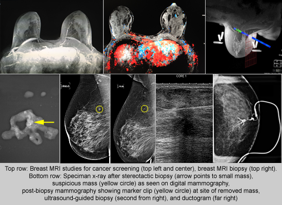 Mammograms - UCSF