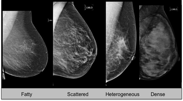 FDA Approves Ultrasound Imaging Device for Dense Breast