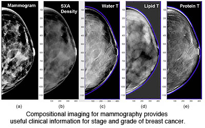 Mammography - UCSF Medical