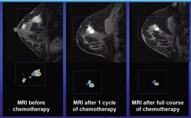 MRI During Treatment - UCSF Medical