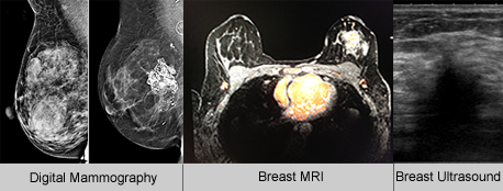 Mammography Imaging - UCSF Medical
