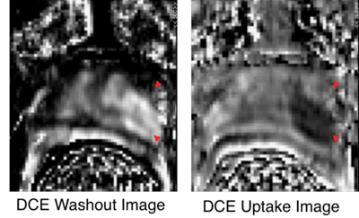 Dynamic Contrast Enhanced MRI