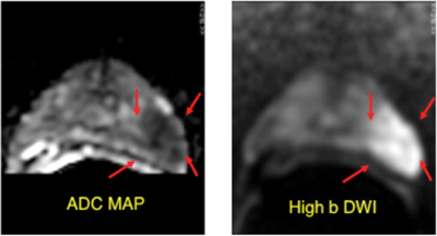 diffustion weighted imaging