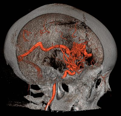 Brain Arteriovenous Malformations (AVMs)