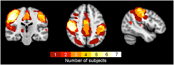 Functional Connectivity (fMRI, MEGI)