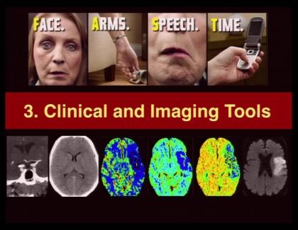 Embedded thumbnail for Neuro Imaging: Adult Stroke