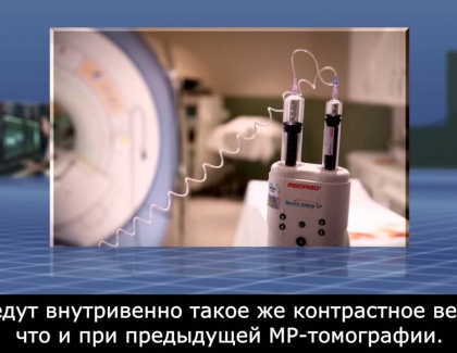 Embedded thumbnail for MRI-Guided Breast Biopsy (Russian)