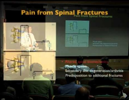 Embedded thumbnail for Spinal fractures