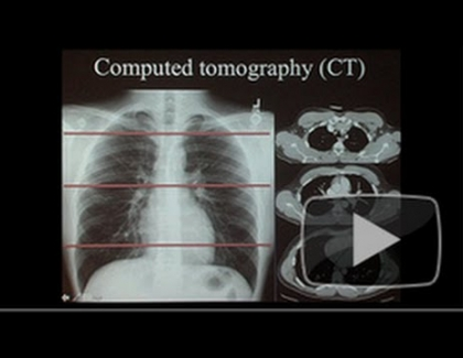 Embedded thumbnail for How Vivid Images are Reducing Lung Cancer Deaths