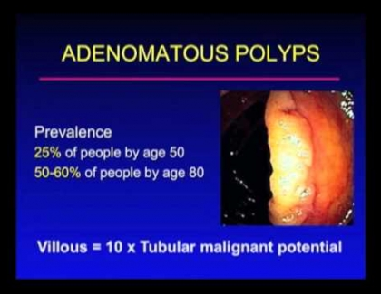 Embedded thumbnail for How prevalent are polyps?