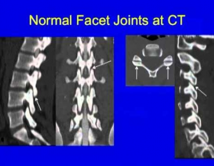 Embedded thumbnail for What is scoliosis?