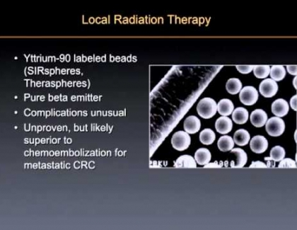 Embedded thumbnail for How do interventional radiologists use radio embolization?