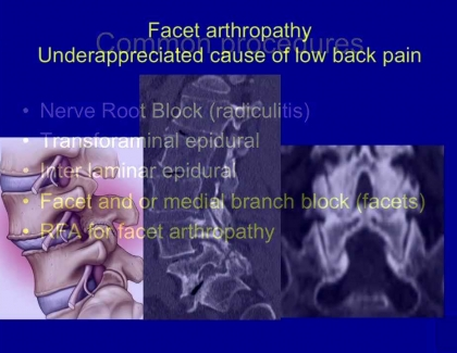 Embedded thumbnail for Facet Disease: An under-appreciated Cause of Lower Back Pain