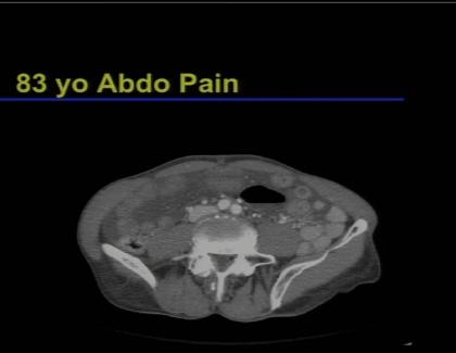 Embedded thumbnail for Abdominal Imaging: Acute Bowel Disease
