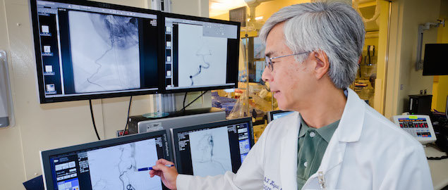 With Strokes Time Is Of Essence >> Time Is Of The Essence When Treating Stroke Ucsf Radiology