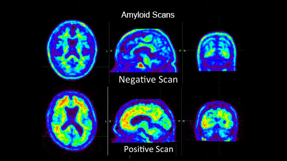 Amyloid PET scan for diagnosis