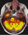 Brain PET/MRI