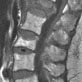 DXA image of spine