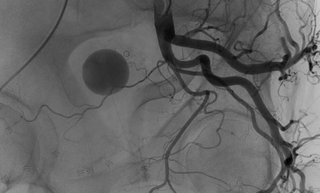 Prostate Artery Embolization (PAE)