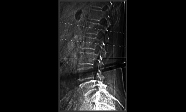 Scout radiograph showing sections through the vertebral bodies which are used to measure the bone density. Radiograph also shows that all vertebral bodies are intact without fracture.