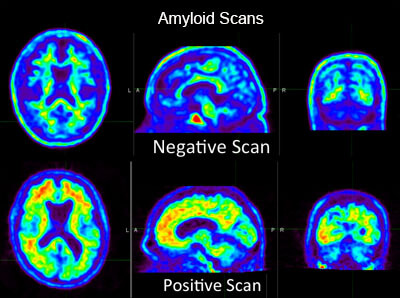 Amyloid Scan Showing Positive and Negative Alzheimer's Diagnosis