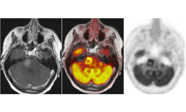 This MRI scan shows how cancer would grow in the future - Rediff.com India  News
