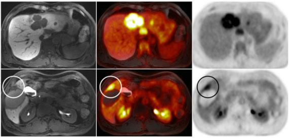 Liver Tumor Pet Mri Ucsf Radiology