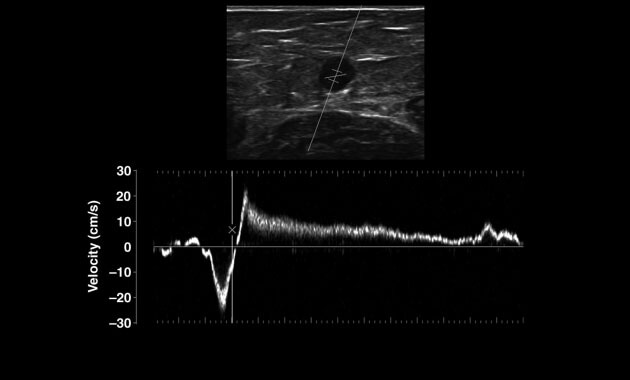 Pulsed-wave Doppler image for Varicose Veins