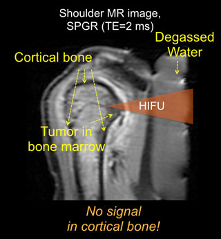 cortical bone HIFU diagram