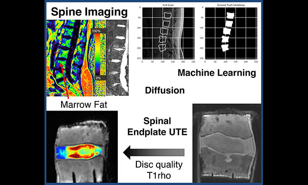 Spine imaging - Musculoskeletal Magnetic Resonance Imaging Lab