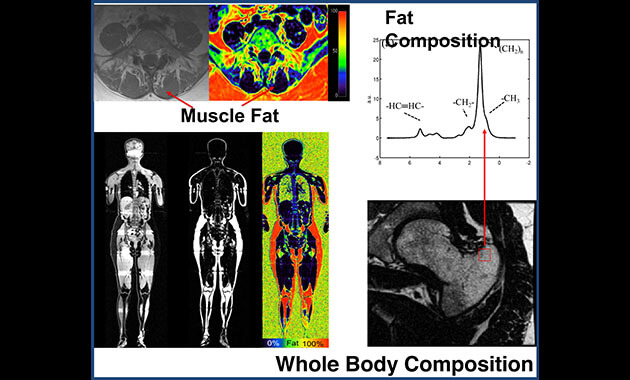 Whole Body Imaging - Musculoskeletal Magnetic Resonance Imaging Lab