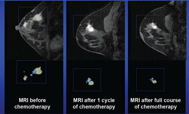 Breast MRI used to assess changes of chemotherapy