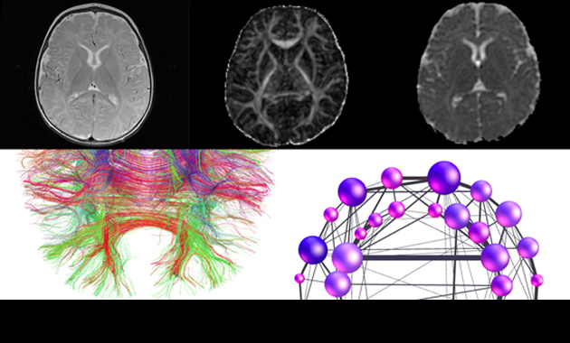Imaging Research for Neurodevelopment Lab