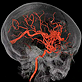 Brain Arteriovenous Malformations (bAVM)