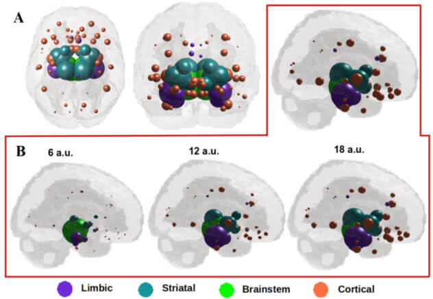 Nigra-seeded network diffusion shows spatial evolution of Parkinson's