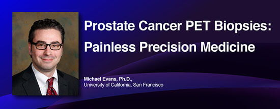 Prostate Cancer PET Biopsies: Painless Precision Medicine