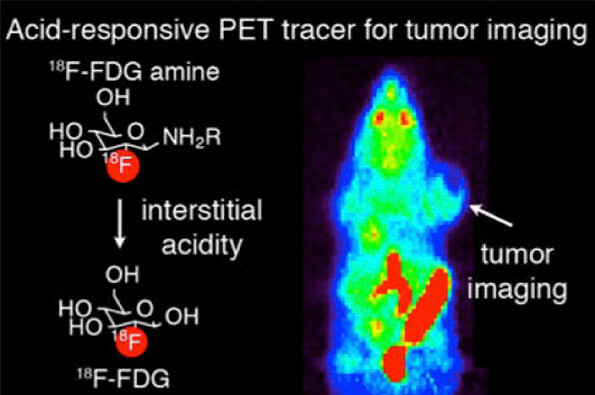 PET scan detect acidic tumors