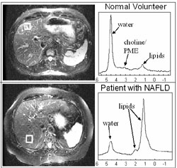 Normal vs NAFLD Spect
